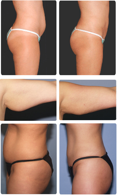 pro-lipo-before-and-after